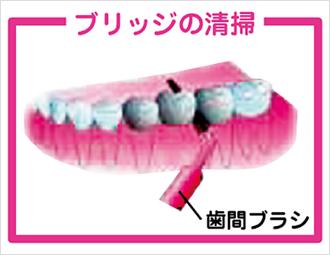 頻度 糸 ようじ デンタルフロス、歯間ブラシおすすめ13選 効果的な使い方や使用頻度、小林製薬の糸ようじなど人気商品も紹介